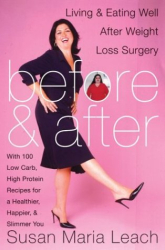 Susan Maria Leach: Before and After: Living and Eating Well After Weight Loss Surgery