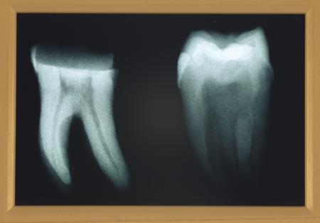 King John teeth 1216