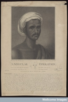 Reproduction of a journal page showing a moustached Asian man with a reconstructed nose wearing a turban